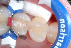 GR Inel Composi-Tight 3D Fusion premolar albastru #FX400-1 - imagine 2